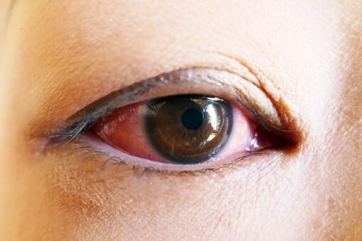 充血している目