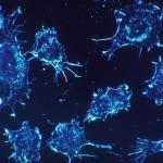 特定の大麻抽出物が癌細胞を死滅させる可能性を示す新たな研究結果