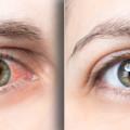 【赤目対策におすすめの商品3選】大麻を吸うと目が充血する理由と5つの対策
