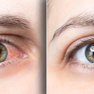 目が充血している女性
