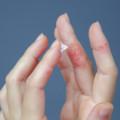 CBDは炎症を抑えられる?抗炎症におすすめな摂取方法や口コミを紹介!